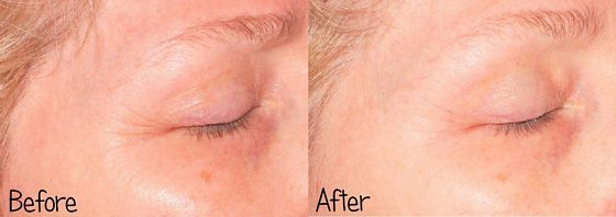 Baby-Quasar-MD-PLUS-before-after