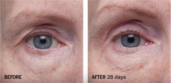 Dr-Dennis-Gross-Ferulic-Retinol-Triple-Correction-Eye-Serum-before-after