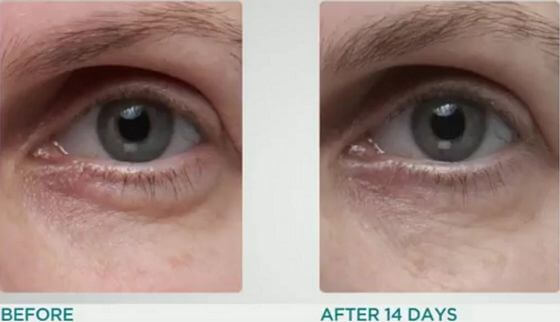 Dr-Dennis-Gross-Ferulic-Retinol-Triple-Correction-Eye-Serum-results