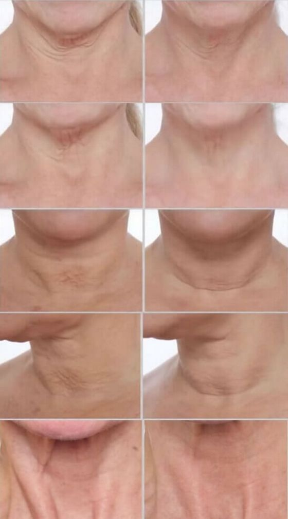 PRAI-AGELESS-Throat-Ionic-Device-before-after-photos