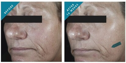 SkinCeuticals-C-E-Ferulic-before-afer-photos