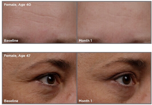 SkinMedica-TNS-Essential-Serum-before-after-photos