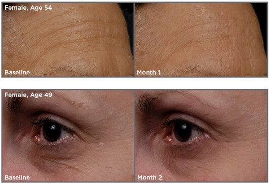 SkinMedica-TNS-Essential-Serum-results