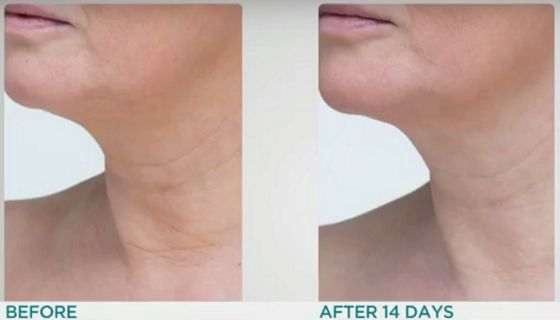 StriVectin-TL-Advanced-Tightening-Neck-Cream-before-after-photos