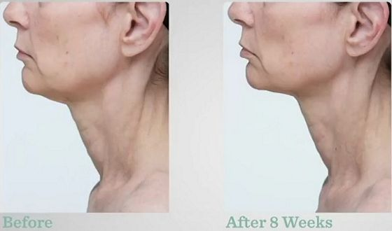StriVectin-TL-Advanced-Tightening-Neck-Cream-results