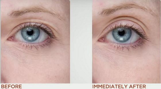 nuface-before-after