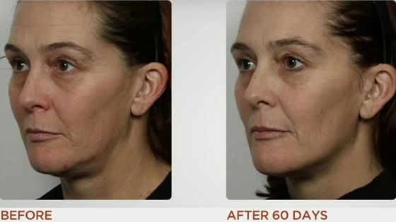 nuface-mini-before-after