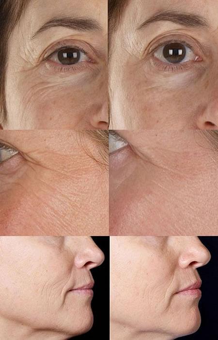 silkn-facefx-before-after-photos