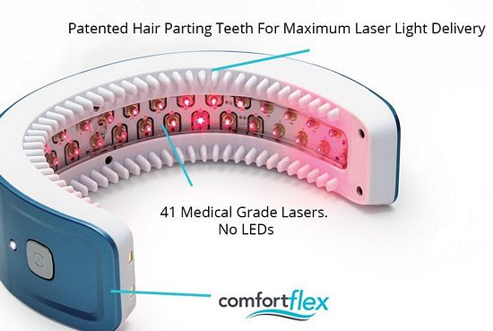laser light therapy for hair loss