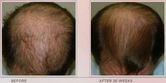laser comb before after