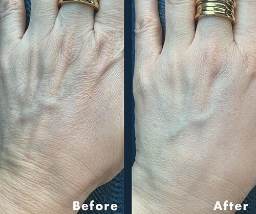 hand-cream-before-after