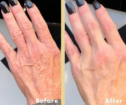 hand-lotion-results