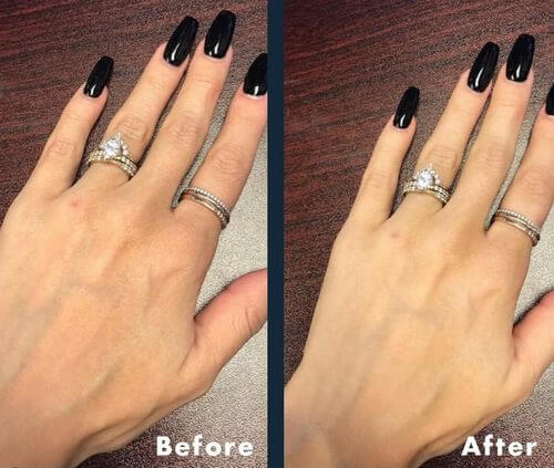 hands before after