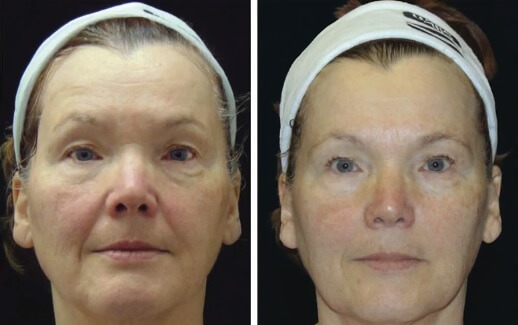 how to tighten sagging skin on face