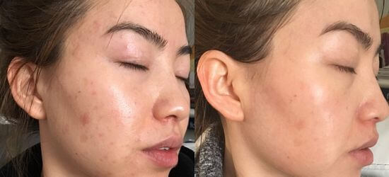 skin whitening before and after