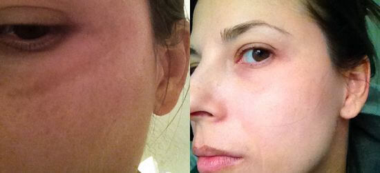 skin whitening treatment before and after