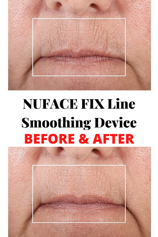 before-after-NuFACE-FIX-Line-Smoothing-Device