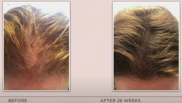 HairMax laser cap before and after