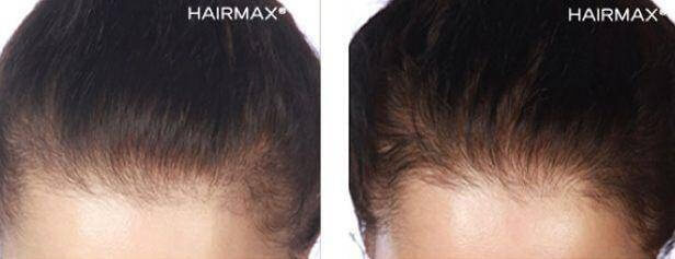 hairmax-results