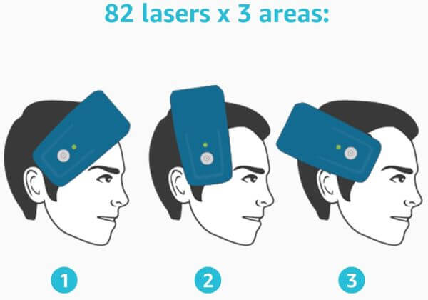 laserband-treatment-areas