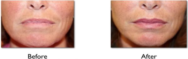 drooping mouth corners before and after