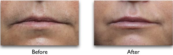 botox for drooping mouth