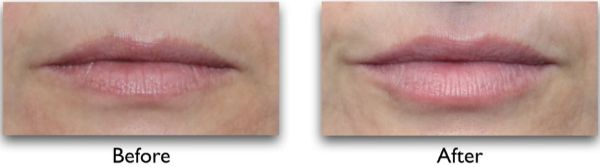 fillers for droopy mouth corners