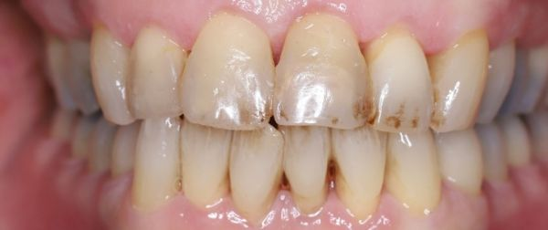 Dental RF Toothbrush Before After