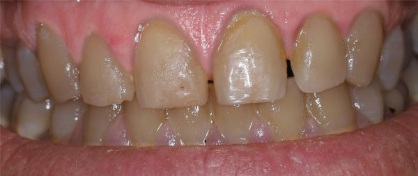 ToothWave before after