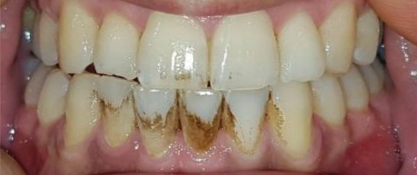 ToothWave results